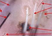 Skóra głowy po koloryzacji z zabezpieczeniem przy użyciu trichoblokera Colosregen. Skóra czysta, mieszki włosowe bez śladu farby.